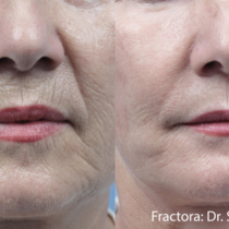 Fractora treatment